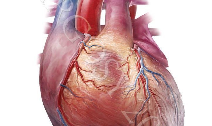 Điều trị nhồi máu cơ tim cấp như thế nào ?