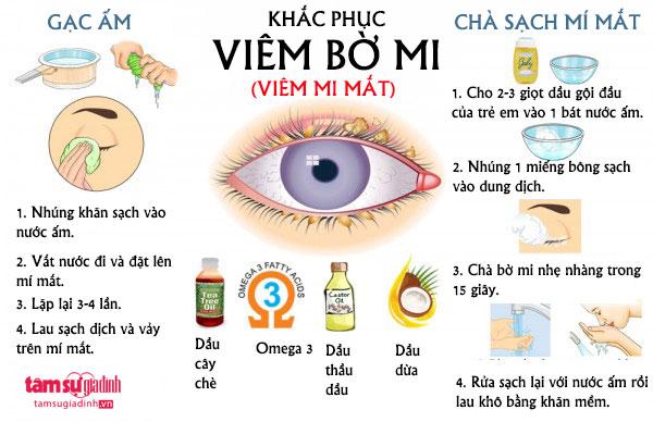 bien-khap-khac-phuc-viem-bo-mi-5