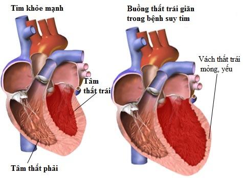 Các thuốc điều trị suy tim