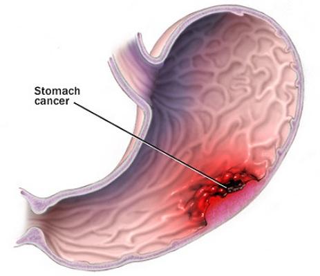 Ung thư dạ dày và cách điều trị