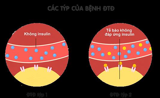 cac_typ_cua_dai_thao_duong